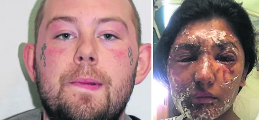 Man charged with acid attack on Muslim cousins