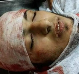 Palestine: Israeli troops kill 17, injure over 1400 Palestinians during peaceful protest
