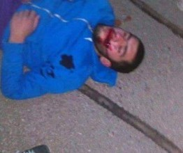 Palestine: Another Israeli settler hit & run on Palestinian youth
