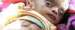 Yemen facing the worst famine in 100 years