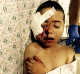 Palestine: Israeli police shoot 5-year-old in the face