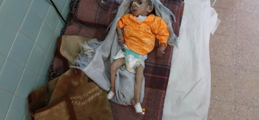 250,000 Yemenis at the brink of starvation