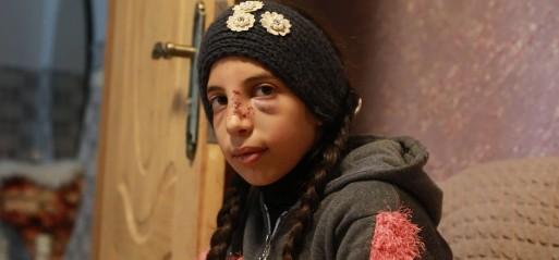 Palestine: One Palestinian killed, 5 injured by Israeli settlers