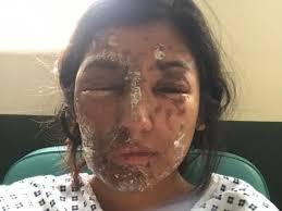 UK Muslim victim says acid attack was Islamophobic