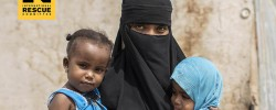 Yemeni children will suffer  from hunger for 20 years